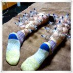 カッピング 足の浮腫 スッキリ